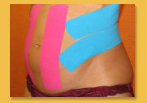 Kinesio Taping for Pregnant Women